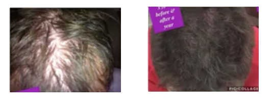 Stem Cell Patch Hair Thicker
