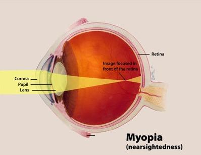 Myopia Treatment Baltimore City
