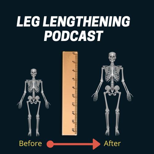 limb lengthening podcast